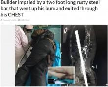 【海外発!Breaking News】錆びた鉄筋、尻から突き刺さり胸へ 建設作業員を救急搬送(中国)