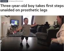 【海外発!Breaking News】脚を切断した3歳児 義足をつけて初めて歩く(英)<動画あり>