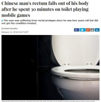 【海外発!Breaking News】個室トイレでスマホゲーム30分 男性「直腸脱」で腸16cmが飛び出す(中国)