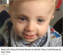 【海外発!Breaking News】すぐに骨折してしまう先天性疾患を抱える男児 「この病をもっと知って」と両親(英)