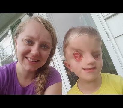 【海外発!Breaking News】世界でわずか60例 全盲・顔面奇形で生まれた6歳男児の母親が世間に伝えたいこと(米)<動画あり>