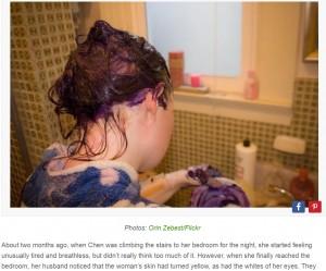 【海外発!Breaking News】毎月の染髪を10年間続けた女性、慢性肝障害に(中国)