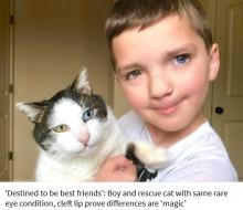 【海外発!Breaking News】虹彩異色症と口唇口蓋裂の少年、同じ症状を持つ猫と出会い親友に(米)<動画あり>