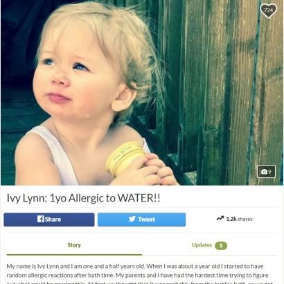 【海外発!Breaking News】汗や涙にも反応 「水アレルギー」と診断された1歳半の女児(米)