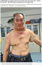 長年の大量飲酒が原因か 68歳男性、脂肪腫で「超人ハルク」のように(中国)