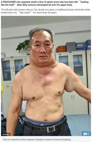 【海外発!Breaking News】長年の大量飲酒が原因か 68歳男性、脂肪腫で「超人ハルク」のように(中国)