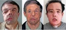 【海外発!Breaking News】世界初、2回目の顔面移植手術を受けた男性 60代から20代の顔に(仏)