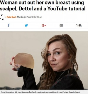 【海外発!Breaking News】豊胸インプラントを自分で取り出した女性 カッターナイフと消毒液で(英)
