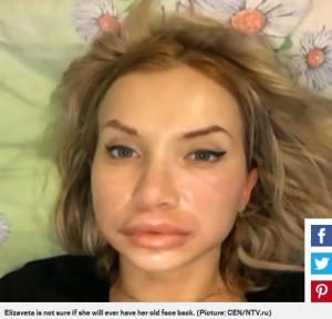 施術に失敗し唇が腫れ上がってしまったエリザベータさん(画像は『Metro 2018年4月18日付「Woman left with swollen, bruised, burst lips after injections went wrong」(Picture: CEN/NTV.ru)』のスクリーンショット)