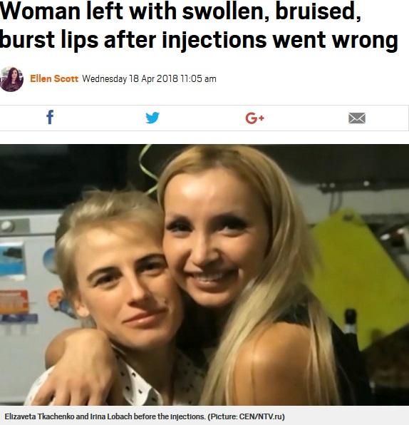 友人(左)にリップフィラーを施術してもらう前の女性(画像は『Metro 2018年4月18日付「Woman left with swollen, bruised, burst lips after injections went wrong」(Picture: CEN/NTV.ru)』のスクリーンショット)