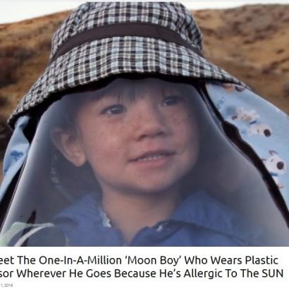 【海外発!Breaking News】米国では100万人に1人 カリフォルニア州に暮らす日光アレルギーの7歳男児