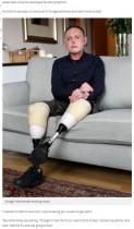 【海外発!Breaking News】飼い犬の唾液で細菌感染した男性、両脚と手の指、鼻を失う(英)