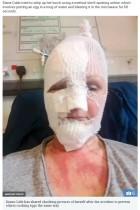 【海外発!Breaking News】電子レンジで調理したポーチドエッグが爆発 顔に重度の火傷を負った女性(英)