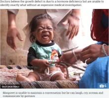 生後6か月のまま成長がストップ、心も体も幼児の23歳男性(印)