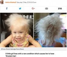 【海外発!Breaking News】「まるでアインシュタイン博士」と言われてしまう髪を持つ5歳女の子(米)