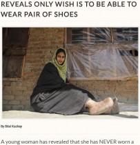 【海外発!Breaking News】「靴を履くのが夢」象皮病で足の巨大化に苦しむ女性(印)