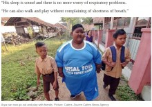 【海外発!Breaking News】「世界一の肥満児」と言われた190kgの男児、83kgの減量に成功(インドネシア)