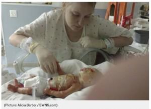 生まれてから数日後のジェイミソン君と母アリシアさん(画像は『Metro 2018年6月20日付「Mum bathes her baby in bleach twice a week to help him fight infection」(Picture: Alicia Barber / SWNS.com)』のスクリーンショット