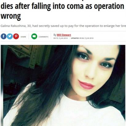 【海外発!Breaking News】夫へのサプライズで豊胸手術を受けた女性、昏睡状態に陥り死亡(露)