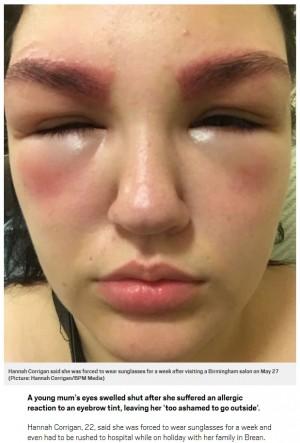 【海外発!Breaking News】パッチテストせずに眉ティント アレルギー反応で瞼が腫れ上がった女性(英)