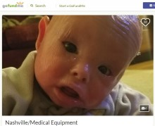 【海外発!Breaking News】漂白剤のお風呂に週に2回 道化師様魚鱗癬と闘う1歳児(米)