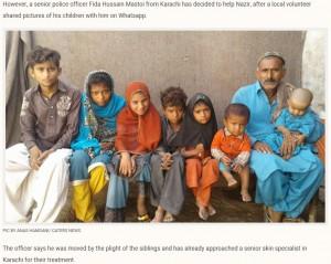 【海外発!Breaking News】手足の皮膚が石化 稀な皮膚疾患の子供4人を抱える両親(パキスタン)