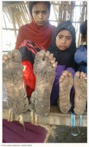 稀な疾患により手足の皮膚が石化していく子供たち(画像は『Storytrender 2018年6月11日付「RARE SKIN DISEASE IS TURNING FEET AND HANDS OF THESE SIBLINGS INTO STONE」(PIC BY ANAS HAMDANI/ CATERS NEWS)』のスクリーンショット)
