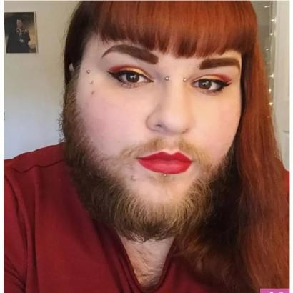 【海外発!Breaking News】多嚢胞性卵巣症候群で髭が生える女性 「ありのままの姿」で生きる決意(米)