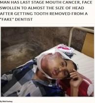 【海外発!Breaking News】歯の痛みで偽医師により抜歯した男性、後に口腔がんが発覚(パキスタン)
