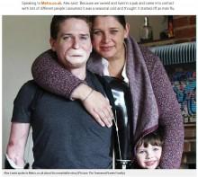 【海外発!Breaking News】重い感染症で四肢切断した男性「今の人生は過去より充実している」(英)<動画あり>