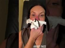 【海外発!Breaking News】整形手術で変形した鼻をヒルに血を吸わせて治療する女性(米)<動画あり>