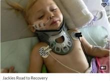 【海外発!Breaking News】床に転倒した2歳児、グラスの破片が刺さり左半身麻痺(カナダ)