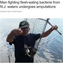 【海外発!Breaking News】カニ捕り中に人食いバクテリアに感染した60歳男性、切断手術免れず(米)