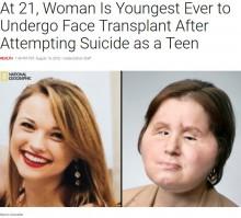 10代で自殺未遂後、顔が損傷した女性 米国で最も若い顔面移植患者に