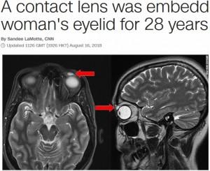 【海外発!Breaking News】失くしたと思ったコンタクトレンズが瞼の裏に 28年ぶりに除去(英)