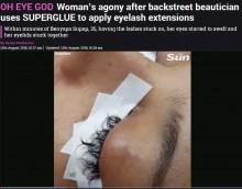"""【海外発!Breaking News】瞬間接着剤で""""まつエク""""された女性「全てのまつ毛を失った」(タイ)"""