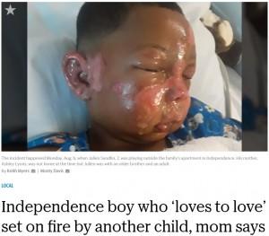 顔が焼けただれてしまったジュリアン君(画像は『The Kansas City Star 2018年8月10日付「Independence boy who 'loves to love' set on fire by another child, mom says」』のスクリーンショット)