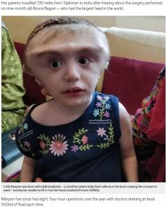 手術を受け頭を支えることができるようになったマリアムちゃん(画像は『Metro 2018年8月22日付「Girl, 2, undergoes pioneering surgery in bid to shrink head(Picture:SWNS)』のスクリーンショット)