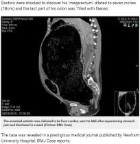 【海外発!Breaking News】極度の便秘で腸に穴 臓器不全の危機に直面した男性(英)