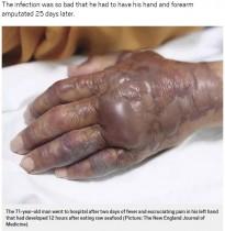 【海外発!Breaking News】寿司を食べた71歳男性、25日後に食中毒菌が原因で腕を切断(韓国)