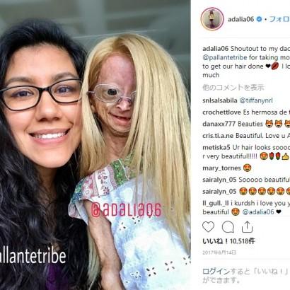 【海外発!Breaking News】プロジェリアの11歳少女のSNSに1,500万人のフォロワー集まる「SNSのスーパースター」(米)