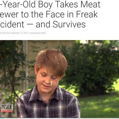 【海外発!Breaking News】BBQの焼き串が顔面に突き刺さるも助かった10歳少年 医師「まさに奇跡」(米)<動画あり>