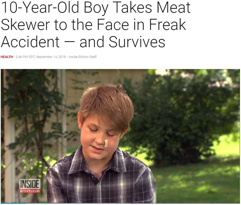 鉄串が顔面を突き刺すも助かった少年(画像は『Inside Edition 2018年9月14日付「10-Year-Old Boy Takes Meat Skewer to the Face in Freak Accident — and Survives」』のスクリーンショット)