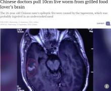 【海外発!Breaking News】BBQが好きな男性の脳から10センチの寄生虫を摘出(中国)