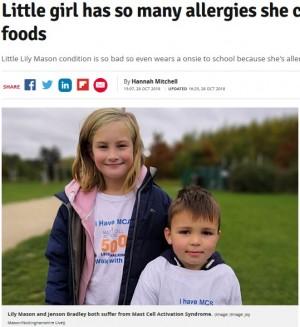 【海外発!Breaking News】口にできる食べ物がわずか9品 深刻なアレルギー症状を引き起こす病を抱える9歳少女(英)