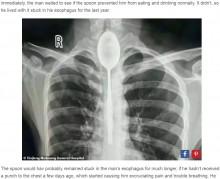 【海外発!Breaking News】20cmのスプーンを食道に放置したまま1年間過ごしていた男性(中国)