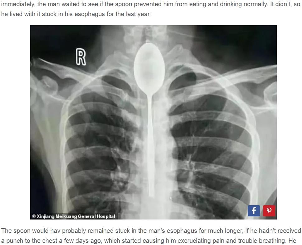 【中国】20cmのスプーンを飲み込む宴会芸に失敗、1年間放置した男性 医者がレントゲン画像を見てショックを受ける※画像
