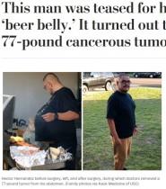 """""""ビール腹""""とからかわれていた男性、35kgの悪性腫瘍を摘出(米)"""