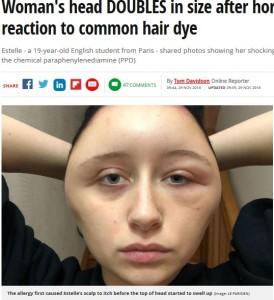 染髪剤でアレルギー反応を起こし顔が腫れ上がったエステルさん(画像は『Mirror 2018年11月29日付「Woman's head DOUBLES in size after horrific allergic reaction to common hair dye」(Image: LE PARISIEN)』のスクリーンショット)
