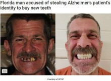 """【海外発!Breaking News】他人のIDを盗用し""""歯""""を購入した男、逮捕時に笑顔のマグショット(米)"""